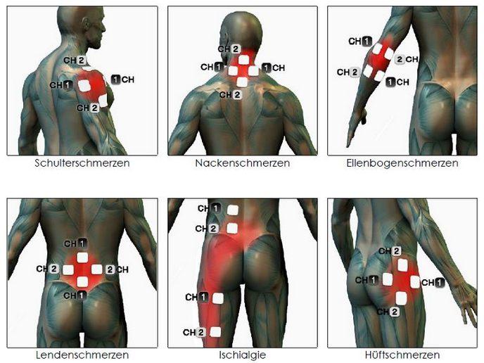 Mikrostrom Positionen Ellenbogen - Rücken