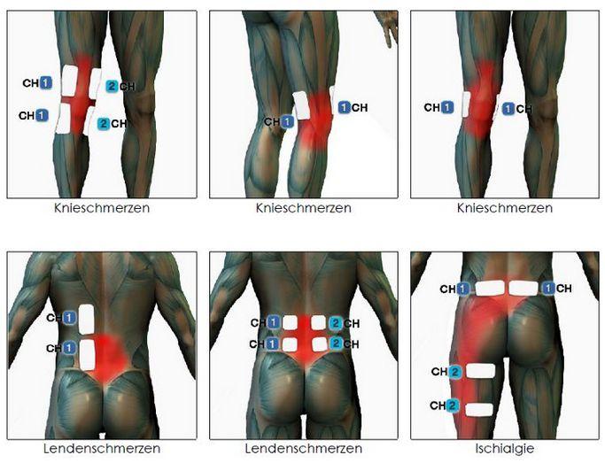 TENS Positionen Knieschmerzen Ischias