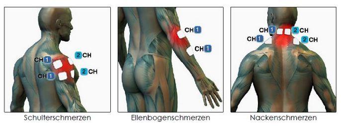 TENS Schmerzen in Schulter Ellbogen Nacken