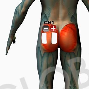 Die Platzierung der Elektroden für EMS Gesäß Po