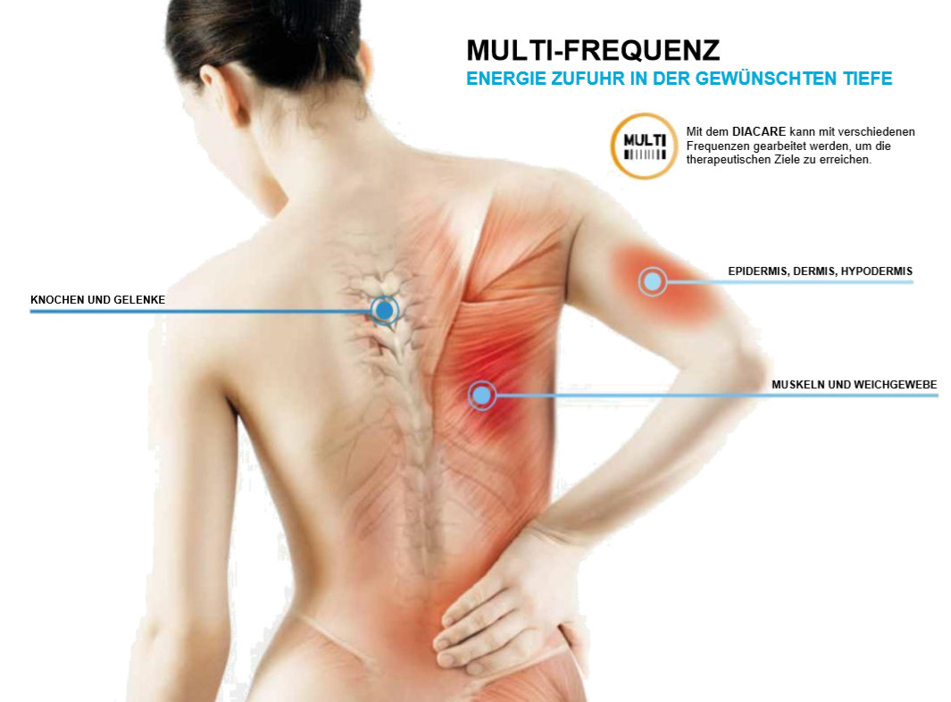 Multifrequenz Tecartherapie
