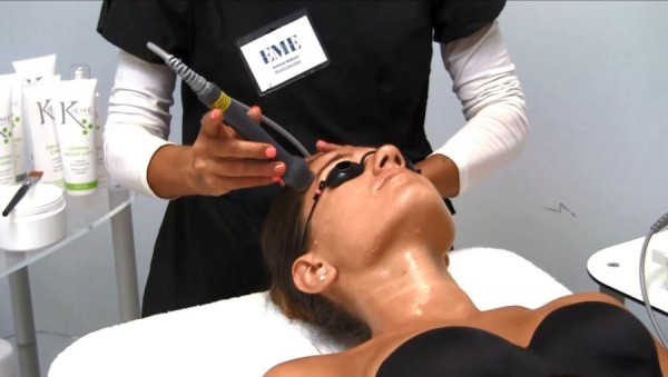 lasertherapie-antiaging