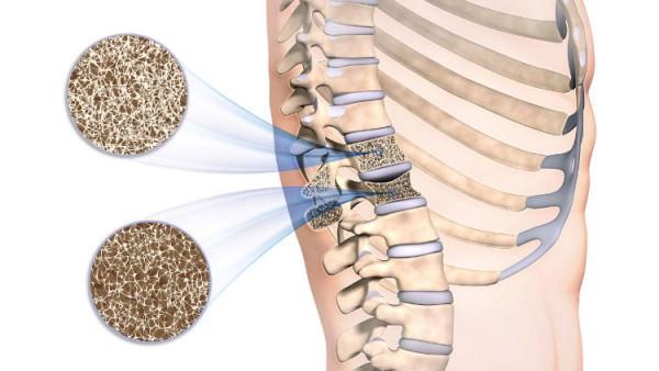 vibrationsplattform-bei-osteoporose