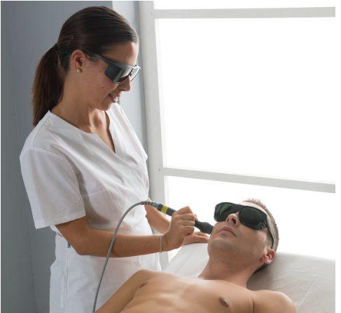 Faltenbehandlung mit Laser